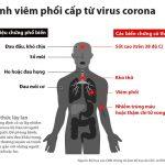 Nhận biết bạn bị cúm thường hay cúm CORONA